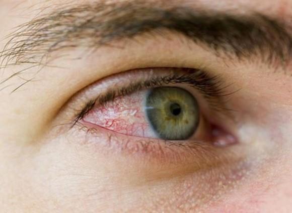 Bệnh viêm kết mạc mắt: Nguyên nhân, triệu chứng, cách điều trị và biện pháp phòng bệnh.