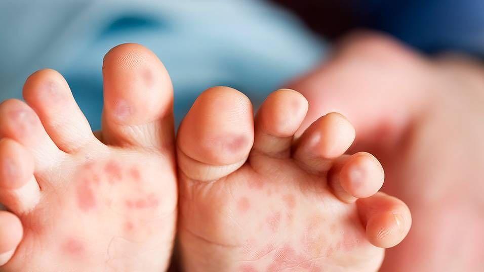 Những điều cần biết bệnh tay chân miệng